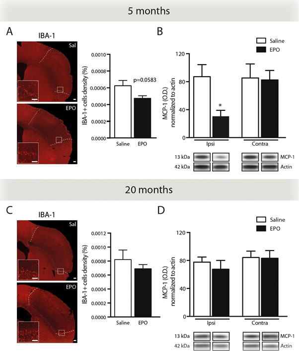 rhEPO administration limits microglial cell recruitment and reduces MCP-1 protein levels in ischemic injury.