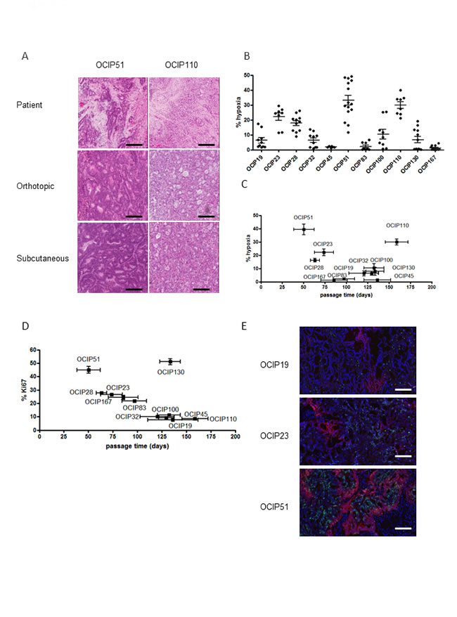 Patient-derived pancreatic xenograft models display different growth rates and hypoxia level and closely resemble the patient tumor.