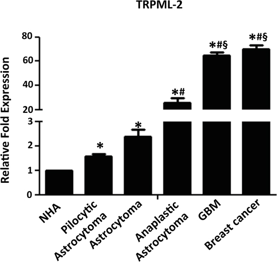 TRPML-2 mRNA expression in glioma tissues.