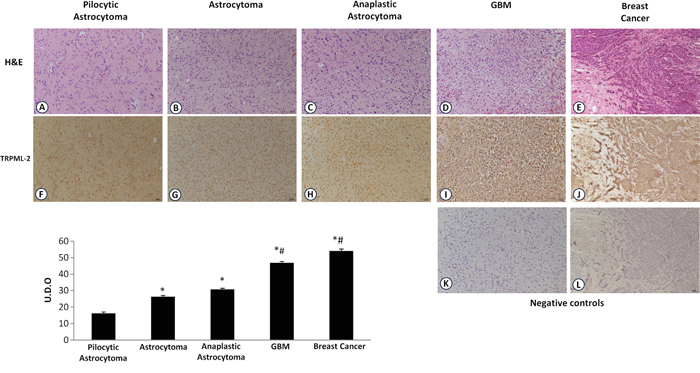 TRPML-2 protein expression in glioma tissues with different pathological grade.