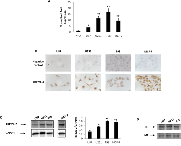 TRPML-2 mRNA and protein expression in high-grade glioma cell lines.
