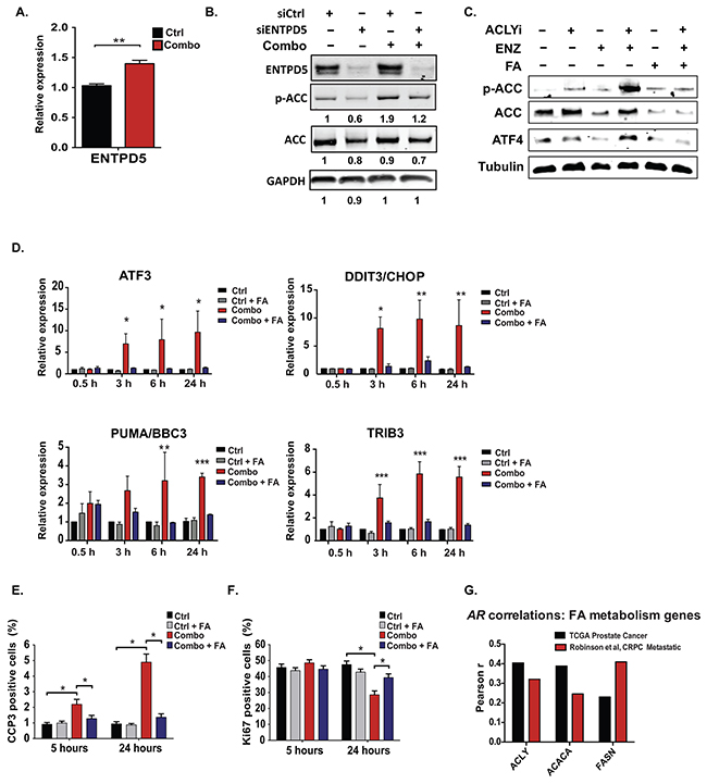Exogenous fatty acids prevent ER stress and support cell proliferation and viability during treatment with ACLY and AR inhibitors.