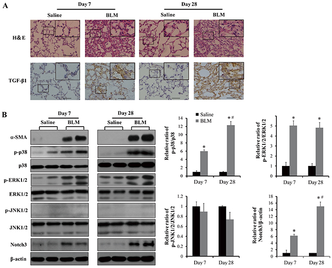 Analyses of phosphorylation of MAPKs, TGF-β1 and Notch3 expression in lungs of (BLM) bleomycin-injured and control mice.