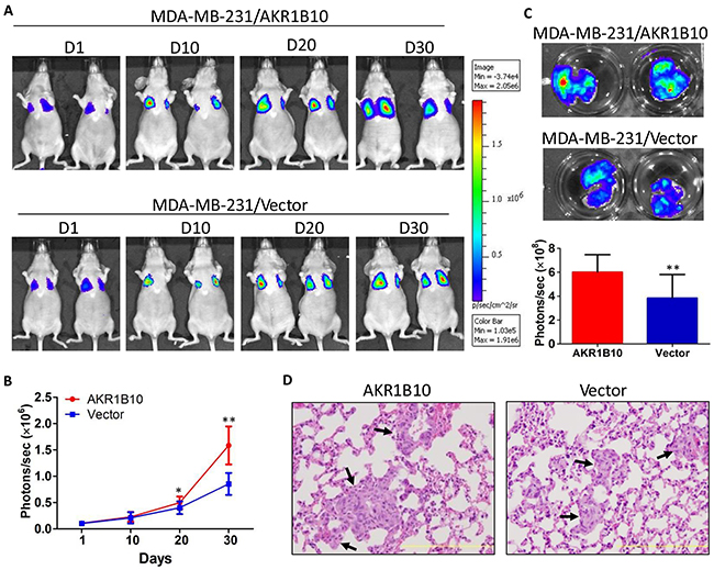 AKR1B10 promotes the lung metastasis of MDA-MB-231 cells in female nude mice.