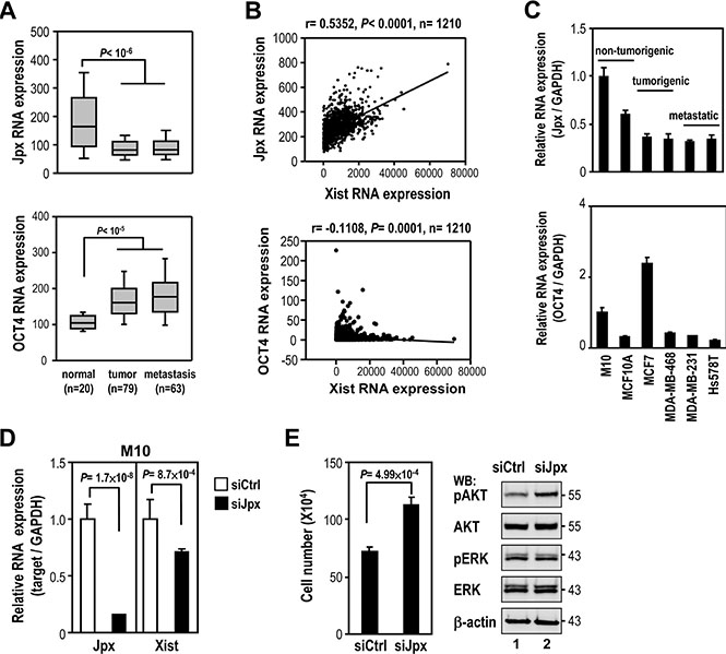 Association of Jpx in regulation of Xist expression in breast cancer.