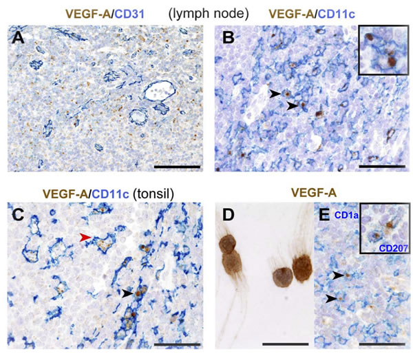 Distribution and phenotype of VEGF-A-producing cells in human reactive lymphoid tissues.