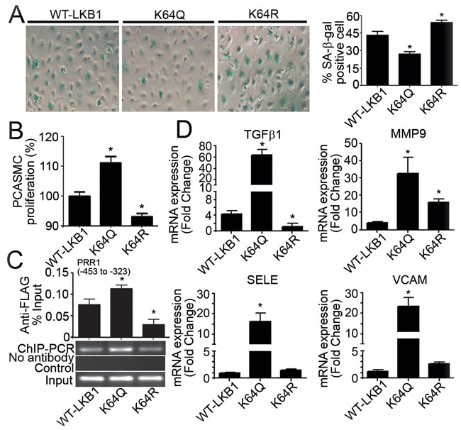 Overexpression of K64Q causes endothelial activation and promotes vascular smooth muscle cell proliferation.
