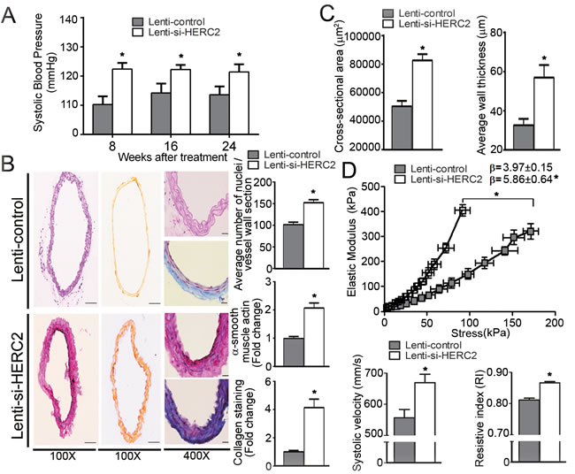 Lentiviral-mediated knockdown of HERC2 abolishes the vascular protective effects of endothelial SIRT1 in eNOS-deficient mice.