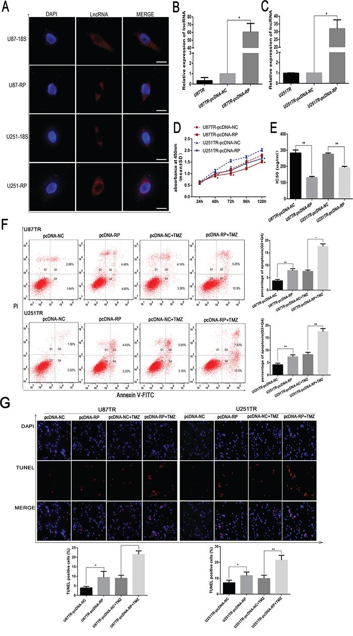 LncRNA RP11-838N2.4 enhances sensitizes of TMZ in U87TR and U251TR.