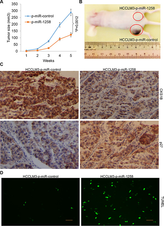 Stable overexpression of miR-1258 decreases tumorigenicity of HCC cells.