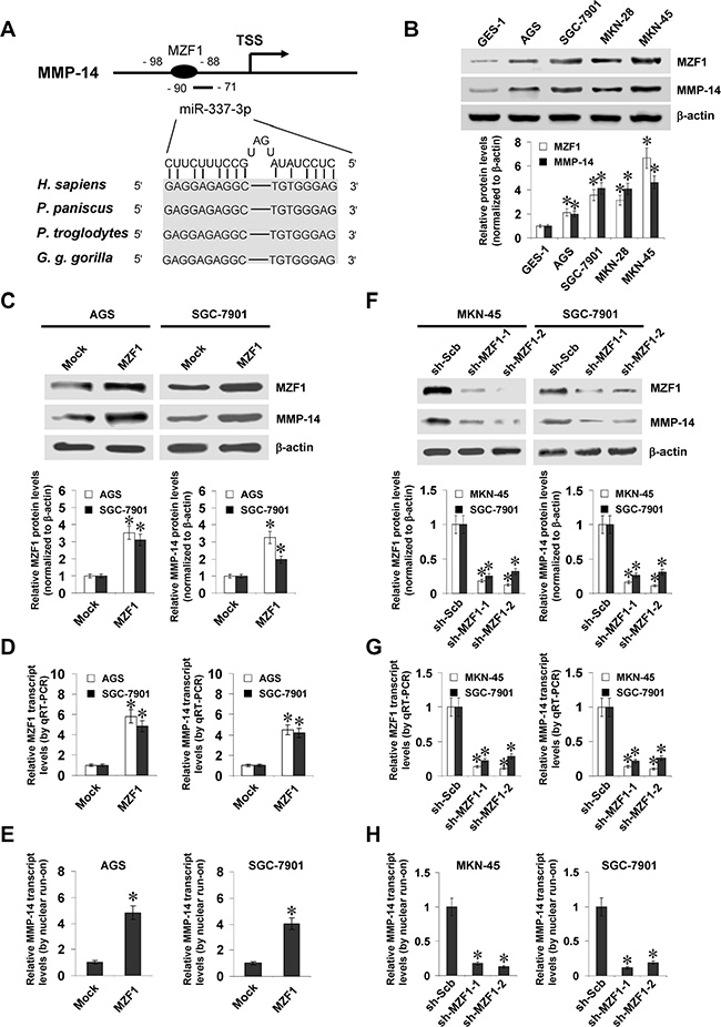 MZF1 facilitates the expression of MMP-14 in gastric cancer cells.