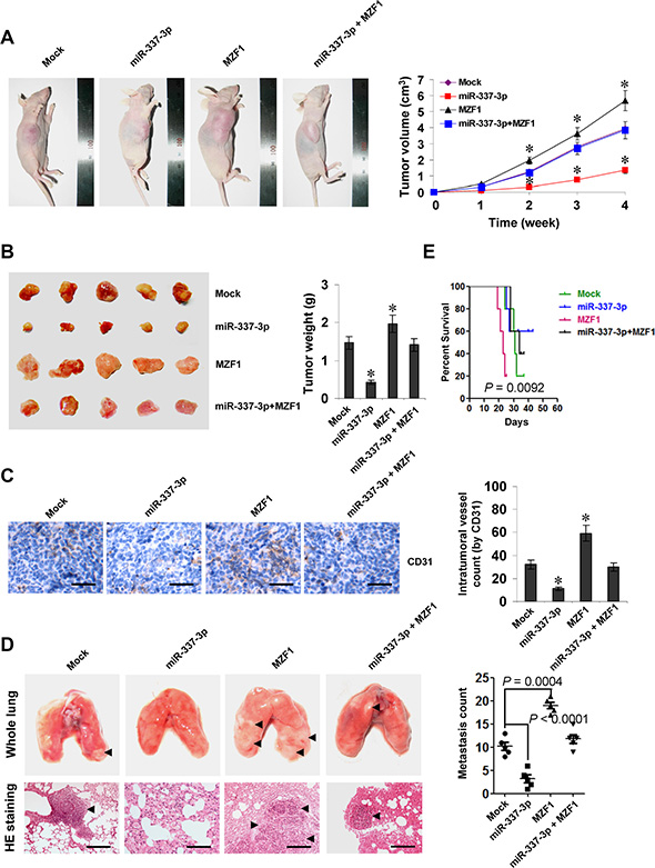 miR-337-3p attenuates the growth, metastasis, and angiogenesis of gastric cancer cells through repressing MZF1-facilitated MMP-14 expression in vivo.