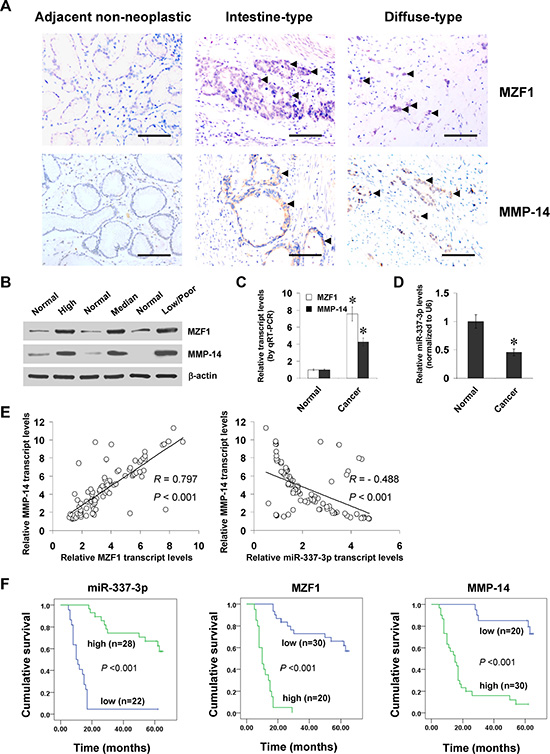 MZF1 and miR-337-3p are positively or inversely correlated with MMP-14 levels in gastric cancer tissues.