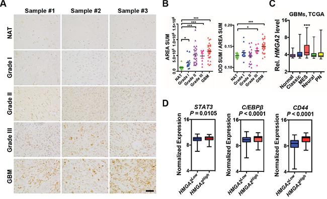 Elevated HMGA2 expression in gliomas.