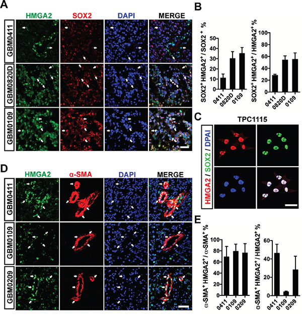 HMGA2 labels GICs and pericytes in glioma tissues.