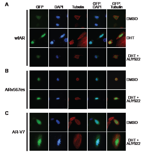 HSP90 inhibition does not affect the nuclear localization of truncated AR variants.