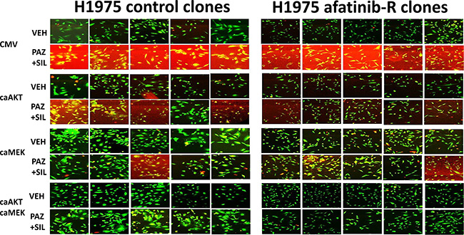 In vivo generated afatinib resistant H1975 clones are killed by [pazopanib + sildenafil] and are protected by dual, but not individual, activation of MEK1 and AKT signaling.