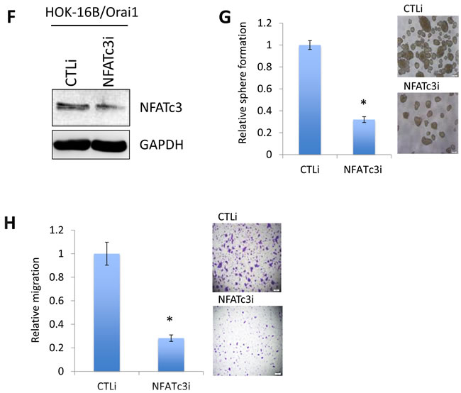 Oncotarget Orai1 Promotes Tumor Progression By Enhancing Cancer