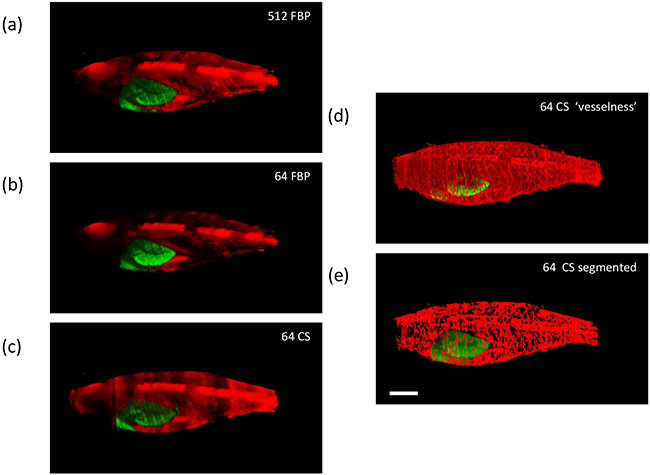 Exemplar reconstructed OPT images of adult [81 days post fertilization (dpf)] TraNac Tg (KDR:m Cherry:Fabp10-rtTA:TRE-eGFPKRASV12) zebrafish expressing liver specific eGFP-labelled tumour and mCherry-labelled vasculature showing maximum intensity projections of eGFP (green) and mCherry (red) fluorescence (scale bar = 2.5 mm).
