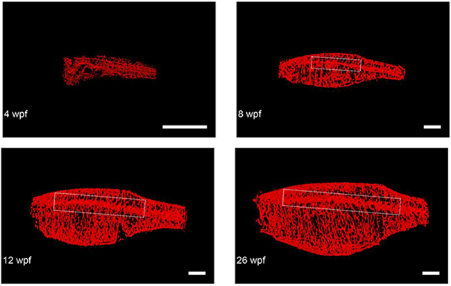 Representative final reconstructed CS-OPT images from a longitudinal study of an individual TraNac Tg (KDR:mCherry) zebrafish re-imaged at 4, 8, 12 and 26 weeks post fertilisation (wpf).