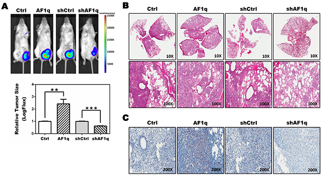 NSG xenograft mouse models demonstrate an association between AF1q expression and STAT3 activation.