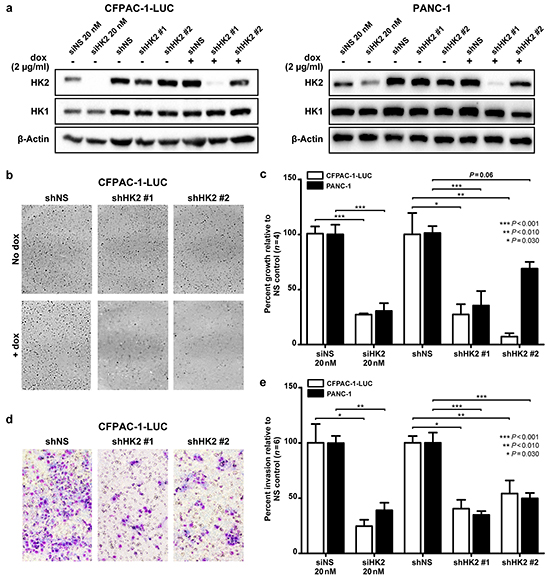 HK2 is required for AIG and invasion in PDAC cell lines.