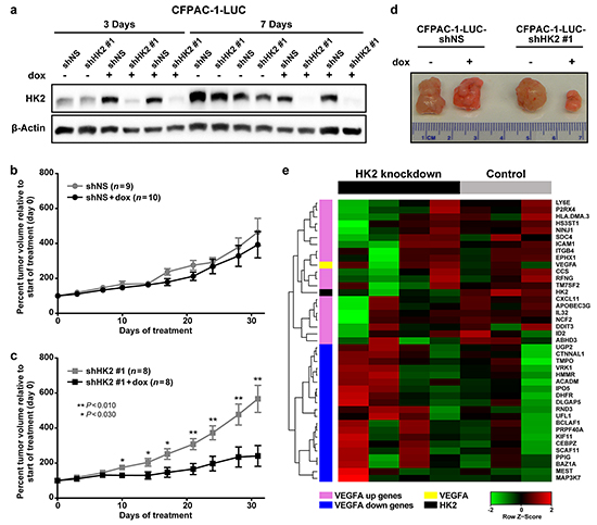 HK2 is required for PDAC primary tumor growth and regulates gene expression.