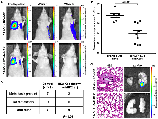 HK2 is required for metastasis in PDAC.