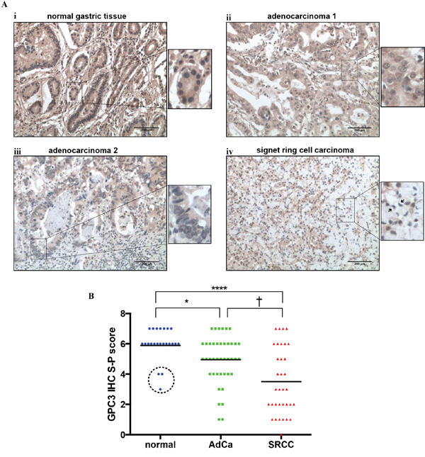 GPC3 protein expression is lower in gastric cancer than in normal gastric tissue.
