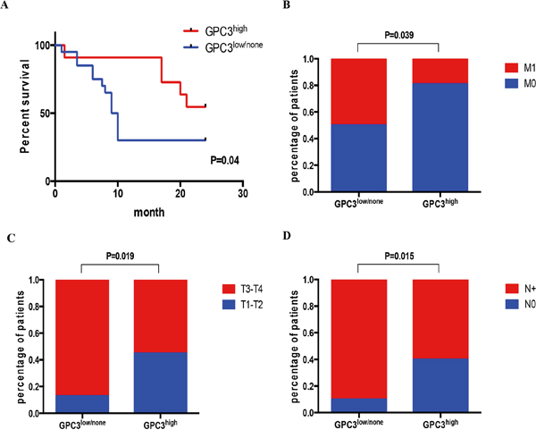 Low GPC3 expression correlates with metastasis and poor survival.