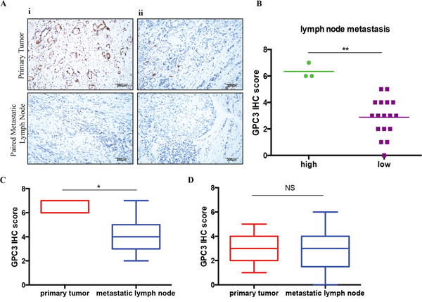 Lost of GPC3 in metastatic lymph nodes.