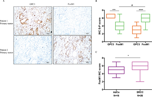 The negative correlation between GPC3 expression and FoxM1 expression in patient tumors.