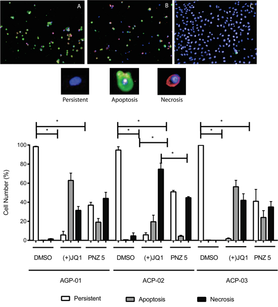 High content images of in vitro cytotoxic activity of (+)-JQ1 A. and PNZ5 B. on cell death pattern in gastric cancer cell lines compared to DMSO control C. (upper panel).