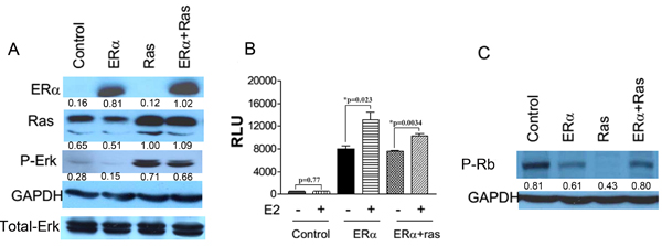 Ectopic expression of ERα and H-ras-V12 in HMEC/hTERT cells.