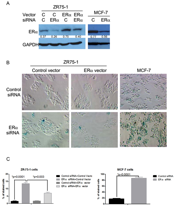 Induction of senescence-like phenotypes by the inhibition of ERα expression in ERα positive breast cancer cells.