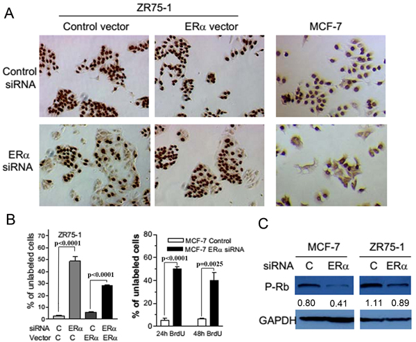 The suppression of ERα expression inhibited DNA synthesis and reduced the phosphorylation of Rb in breast cancer cells.