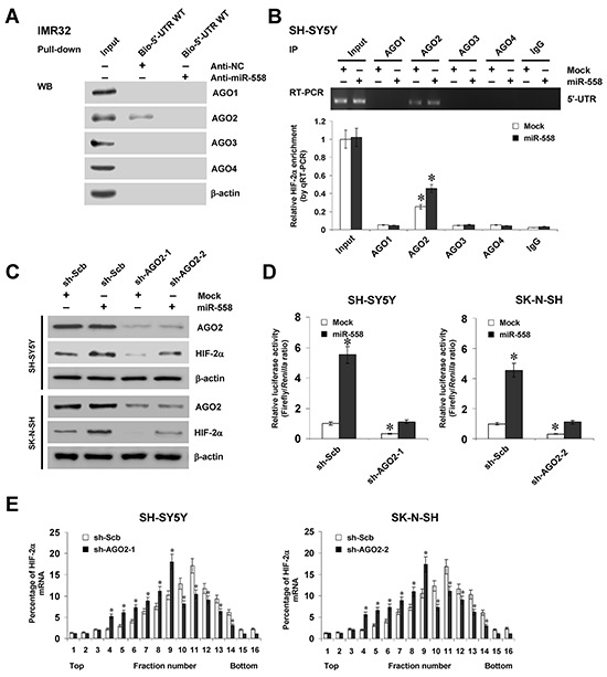 miR-558 recruits AGO2 to facilitate the translation of HIF-2α in NB cells.