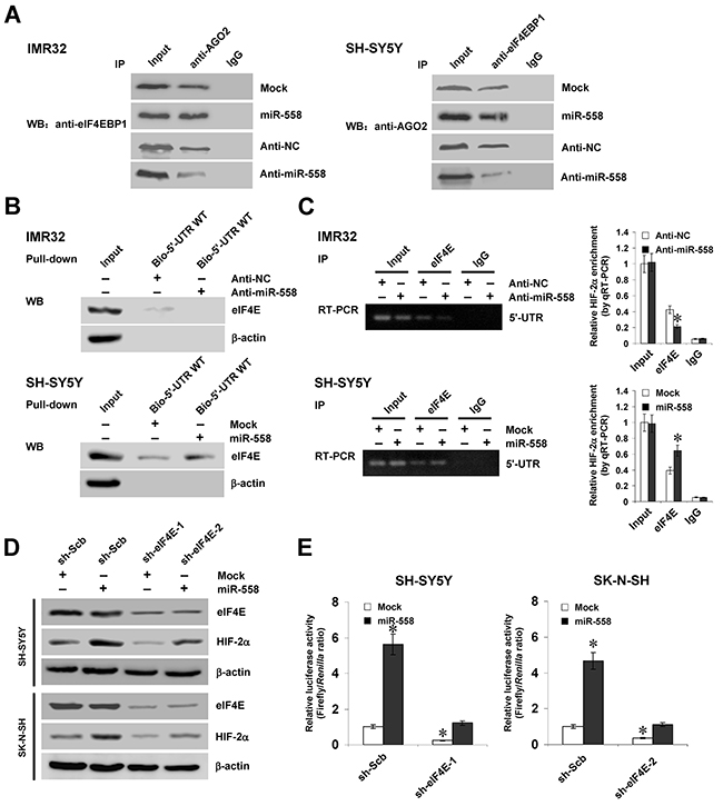 eIF4E contributes to miR-558-facilitated HIF-2α expression in NB cells.