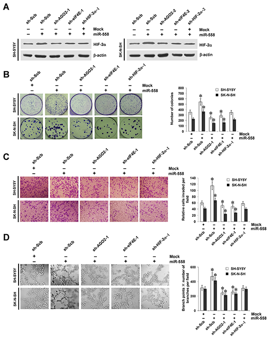 miR-558 promotes the growth, invasion, and angiogenesis of NB cells through facilitating HIF-2α expression in vitro.