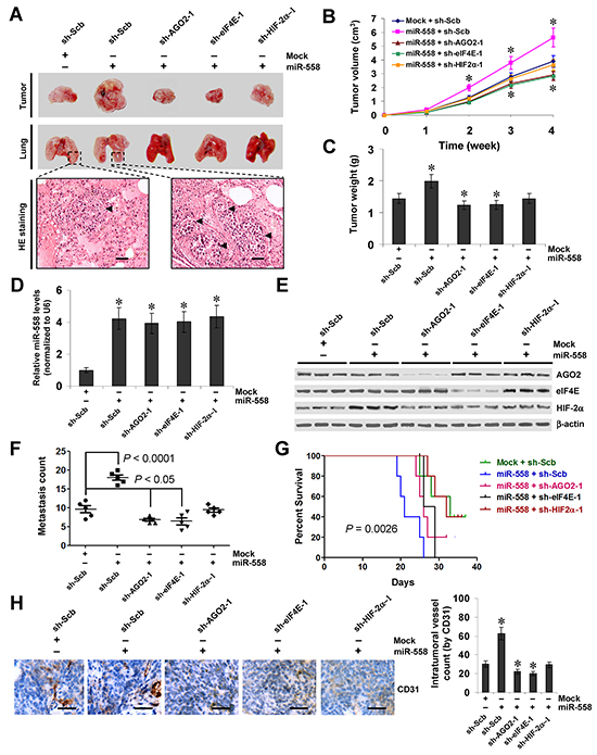 miR-558 promotes the growth, metastasis, and angiogenesis of NB cells through facilitating HIF-2α expression in vivo.