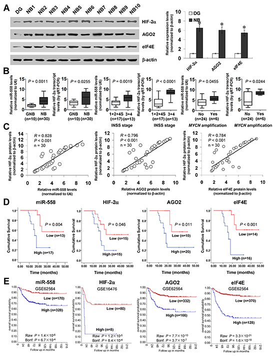High expression of HIF-2α is positively correlated with miR-558, AGO2, or eIF4E levels in NB tissues.
