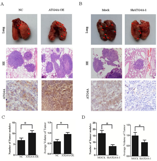 ATG4A promotes the lung metastasis of gastric cancer cells.