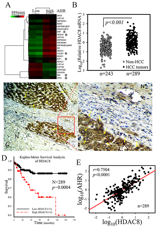 HDAC8 showed a tumor-specific expression pattern and strong correlation with the clinical outcome of HCC patients.