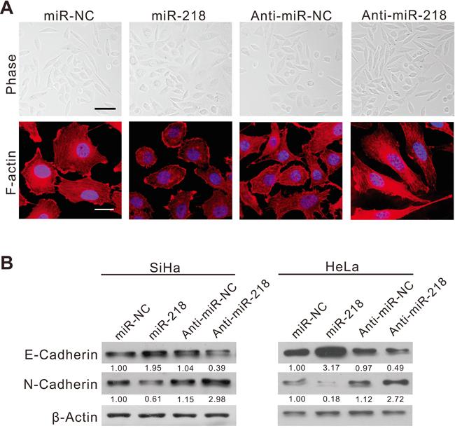MiR-218 inhibits cervical cancer cell EMT in vitro.