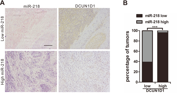 Clinical associations of miR-218 with DCUN1D1 expression.