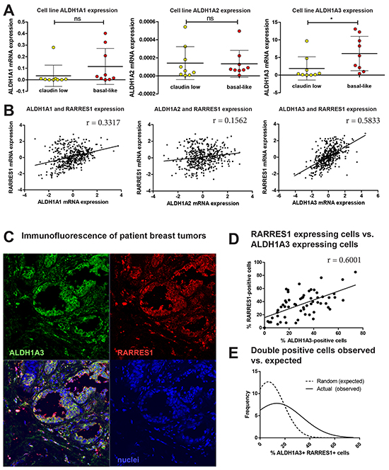 ALDH1A3 expression correlates and colocalizes with RARRES1 expression in patient tumors.