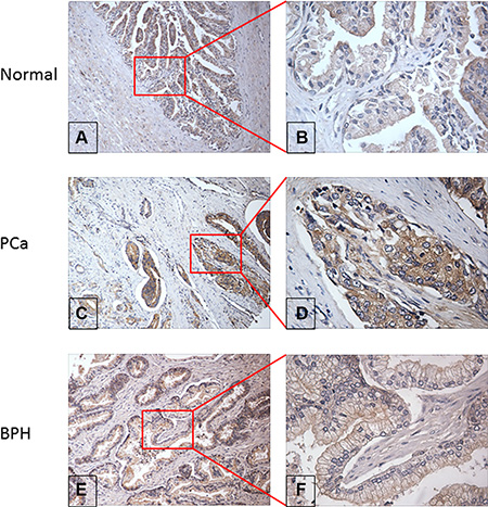 Evaluation of RalA protein expression in normal, PCa and BPH prostate tissue by immunohistochemistry.