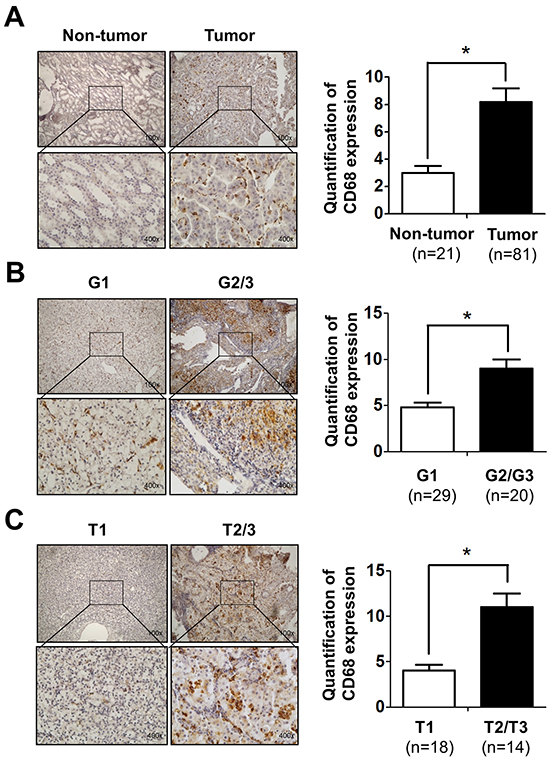 Infiltrating macrophages is positively related to RCC patients' tumor stage and grade.