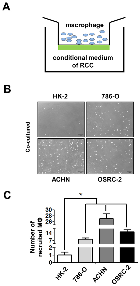 RCC cells have better capacity than normal renal epithelial cells to recruit macrophages.