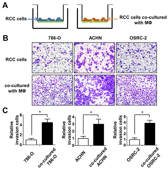 Infiltrating macrophage cells can increase the invasion ability of RCC cells.